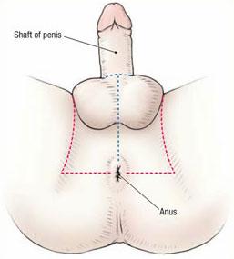 Het perineum